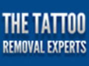 The Tattoo Removal Experts London